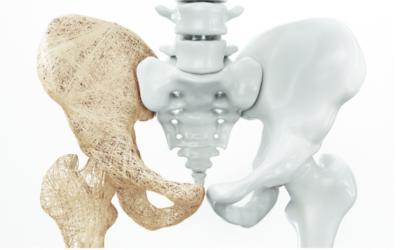 Comment préserver votre capital osseux ?
